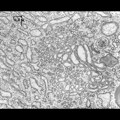 pancreatic cell