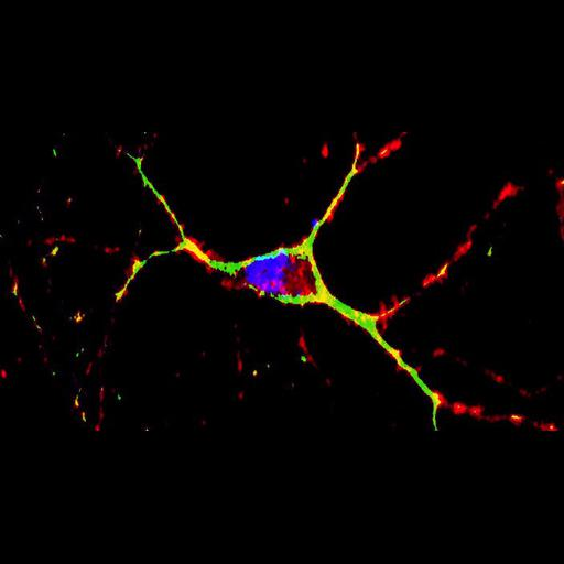 primary striatal neuron